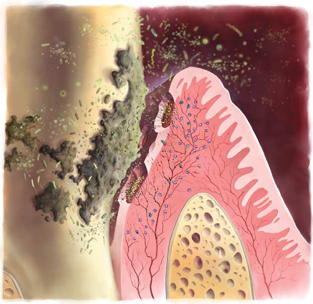 GUM DISEASE INFECTION PICTURE (2)[1]